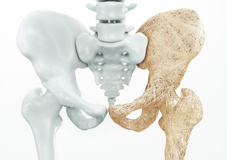 Especialista en osteoporosis en Huejutla